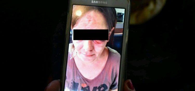 RAJKA NESTIĆ: Moju bolesnu kćer brutalno su pretukli policajci!