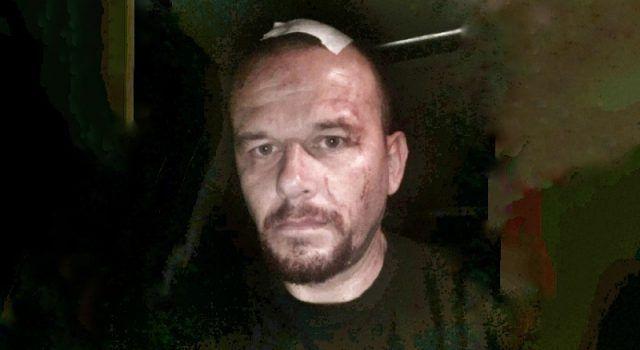 FOTO Zadarskom glazbeniku Josipu Čačiću razbili glavu u Škabrnji