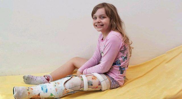 Ena Škoda treba našu pomoć; U srpnju je čeka nova operacija noge u Beču
