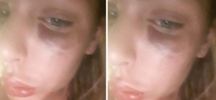 Ava Karabatić objavila fotke natečenog i modrog lica uz opis – krvavo Valentinovo